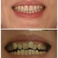 До и после)