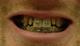что осталось от зубов
