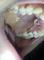 Спустя день после раскрытия ретинированного клыка