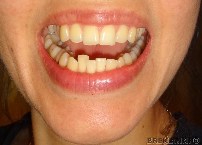 Реставрация зубов после брекетов