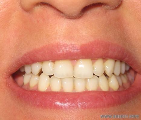 Зубы шестерка фото