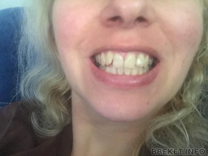 Зубы до брекетов