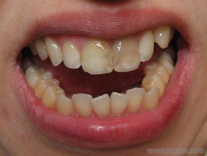 Ряд Зубной фото