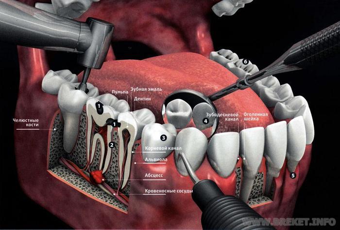 Болит зуб где удаляли нерв
