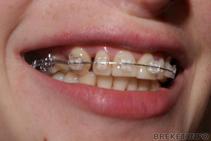 Как сделать клык из зуба