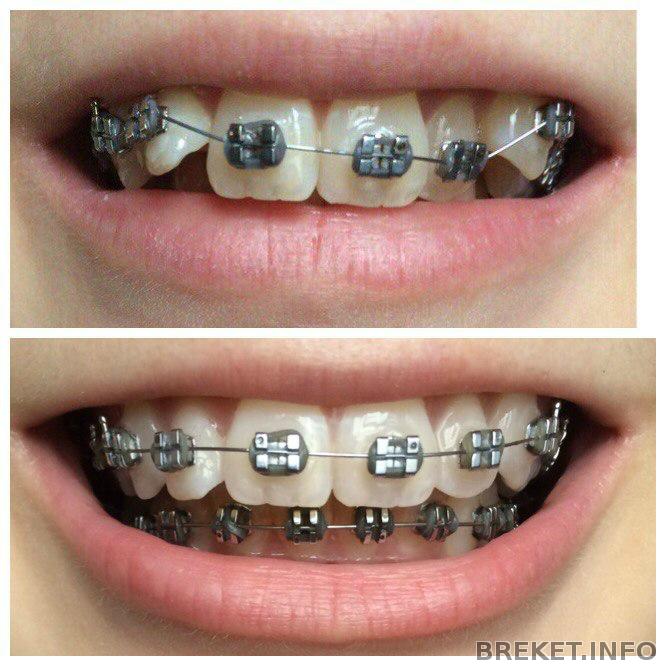 Сколько стоит поставить коронку на зуб цена