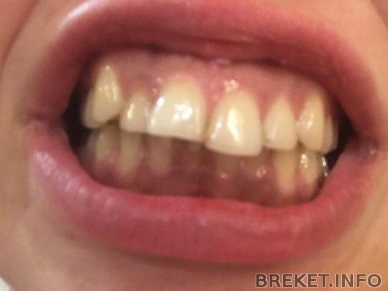 Фотка моих страшных зубьев