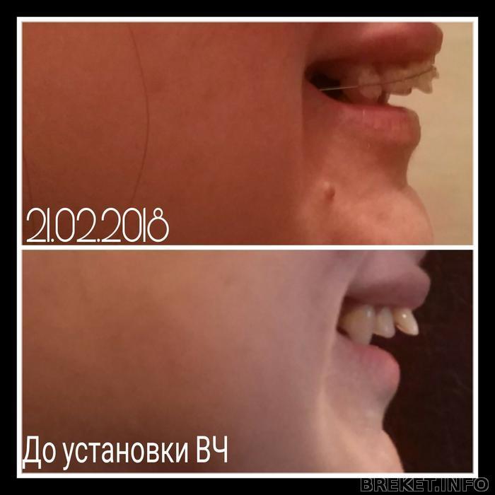 picsart_02-21-08.35.38.jpg