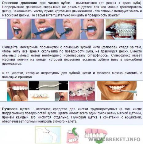 Инструкция Для Зубного Техника