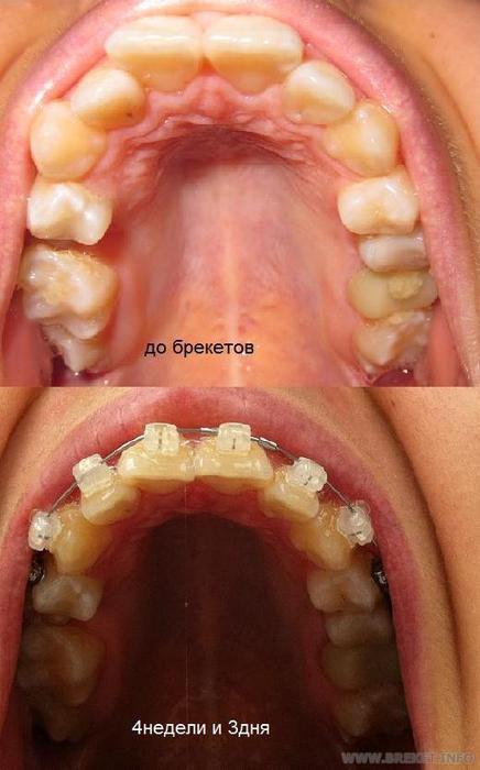 Зубы с пятого по пятый зуб