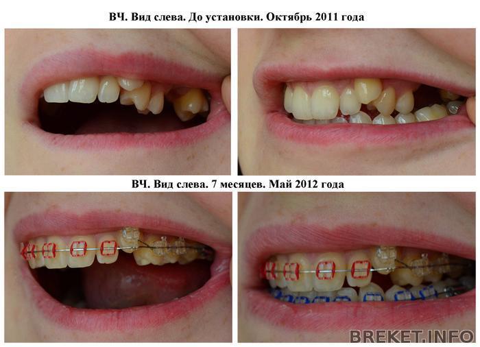 Зуб шестерка вырванный