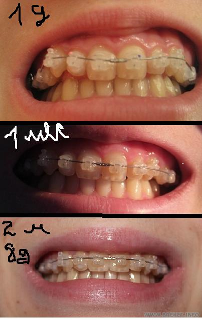 Сравнение 1день-1 месяц-2 месяца