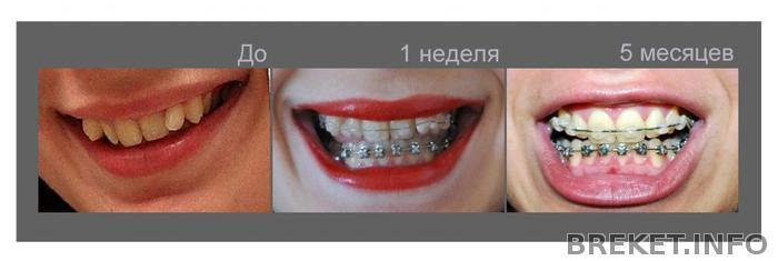 Кому удаляли один зуб для установки брекетов 67
