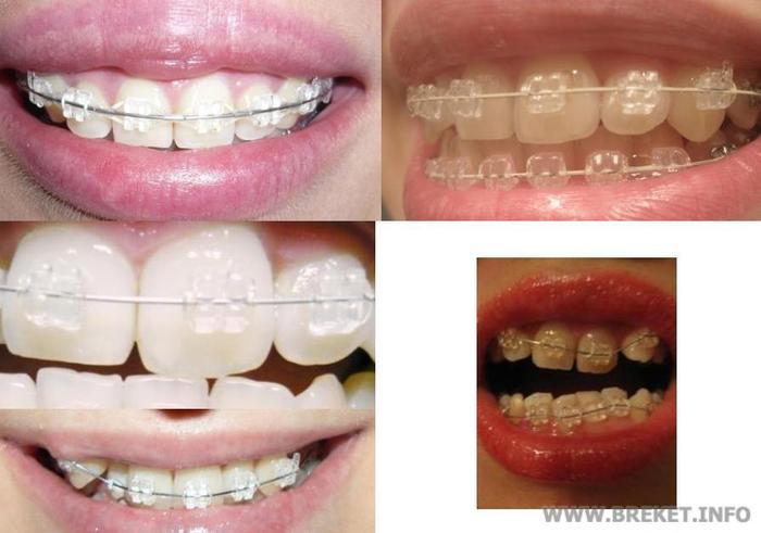 Брекет-системы Ormco (Ормко) - стоматология Все Свои