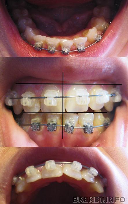 Отбеливаем зубы в домашних условиях перекисью 992
