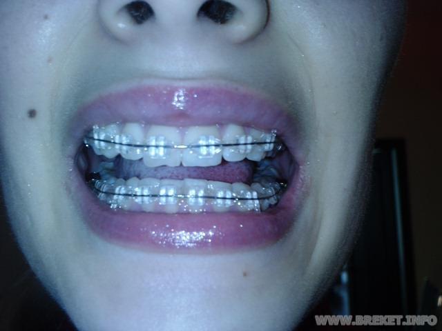 Как в домашних условиях подпилить зубы