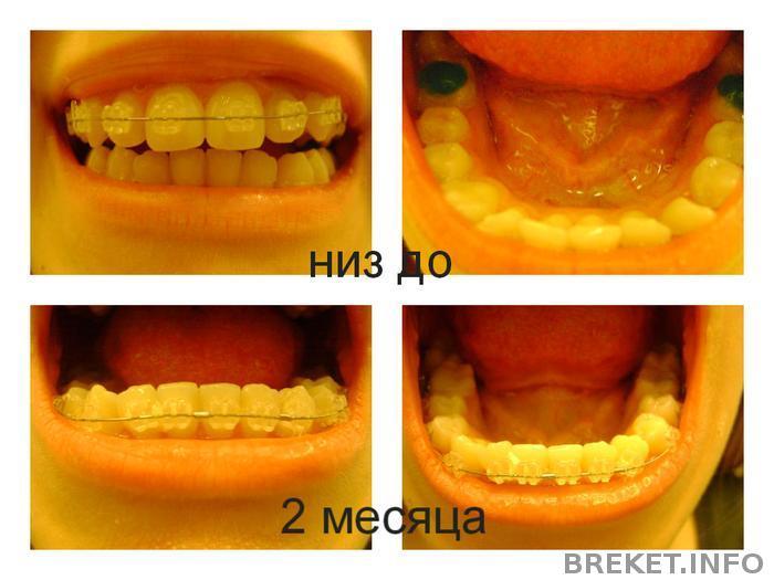 Как сделать так чтобы зуб не болел в домашних