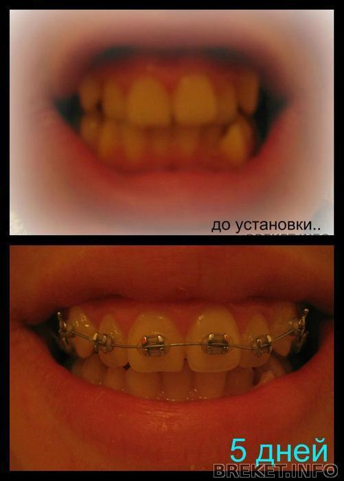 Вставила зубы как привыкнуть