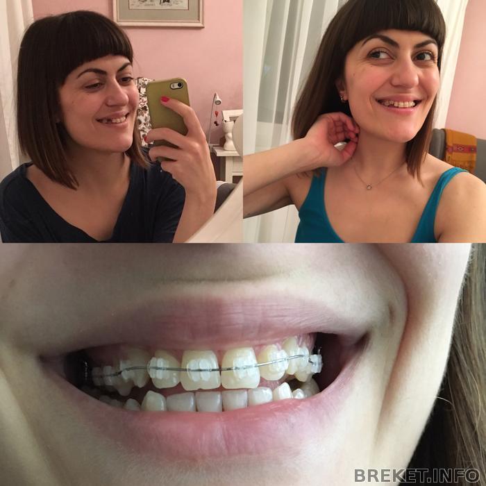 Удалили передние зубы как ходить на работу работа графического дизайнера удаленно беларусь