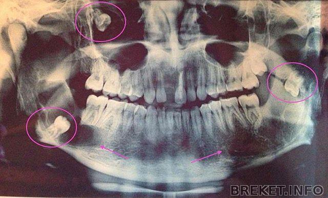 Панорамный снимок зубов сзао