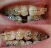 зубы 1
