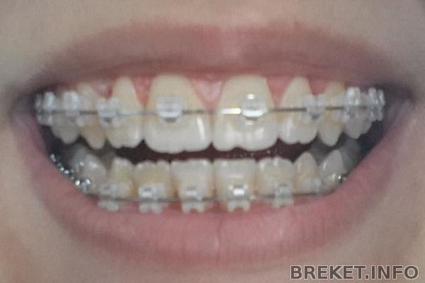 мои зубы