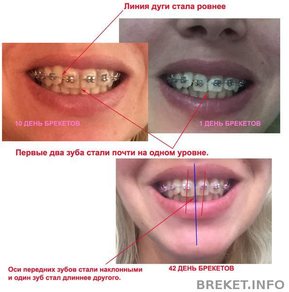 Брекеты, 1,5 мес.Передние зубы стали наклонные и разные по длине