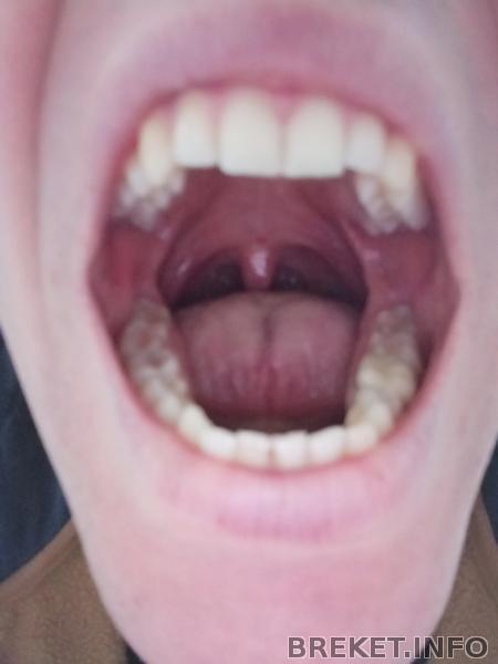убери зуби а то вирву