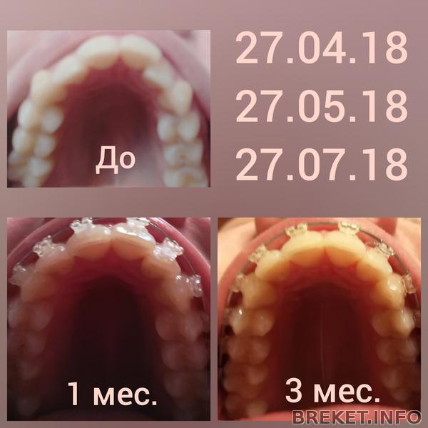 Изменения за 3 первых месяца