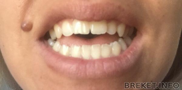Мои зубки