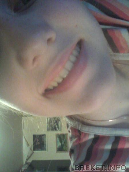 Моя новая улыбка