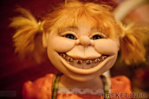 Кукла с брекетами