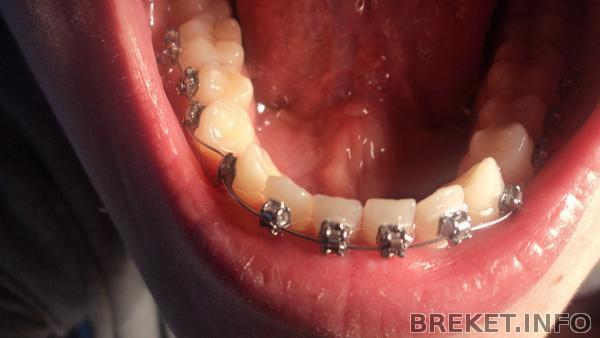 зубки*___*
