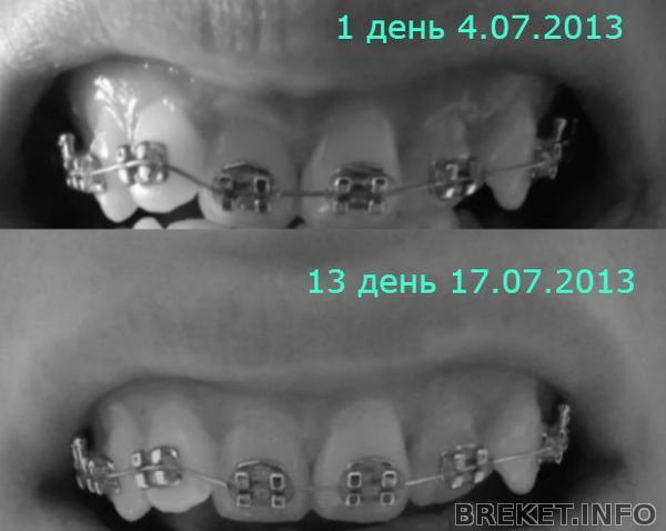 pervye_izmenenich_13_den1.jpg