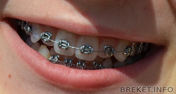 зубызубы
