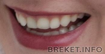Зубки до брекетов.jpg