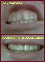 zuby_do_i_posle.jpg