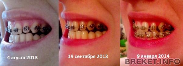 levaya_storona_1.jpg