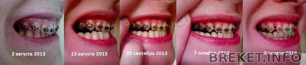 pravaya_storona_1.jpg