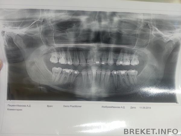 ВЧ - 9.5, НЧ - 6.5 месяцев