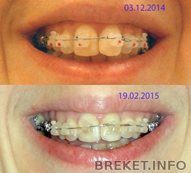 зуб семёрка фото