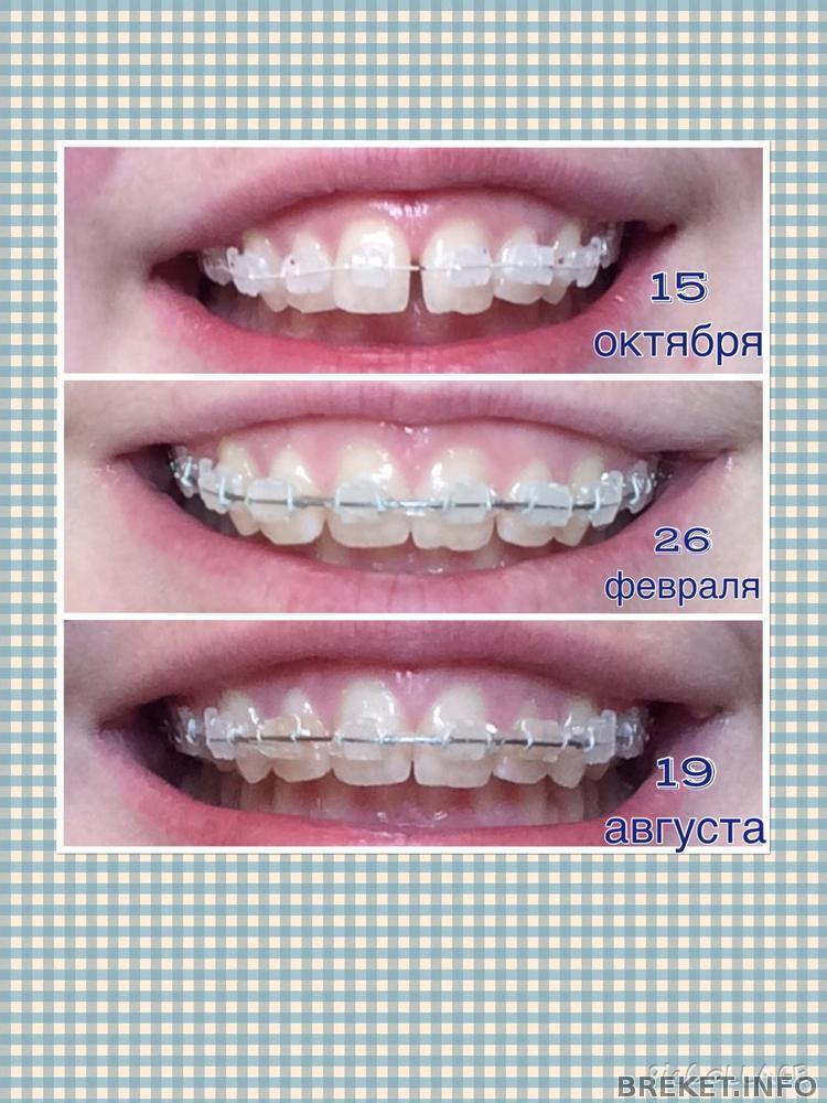 Долго ли будут болеть зубы с брекетами