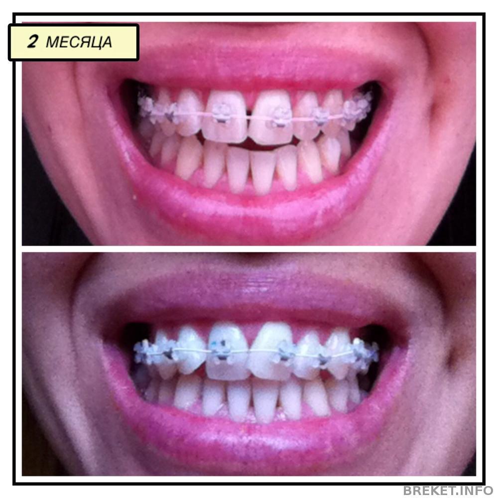 Почему после брекетов зубы выпирают вперед