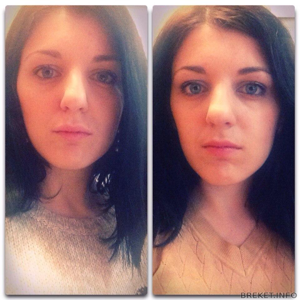 технарь образованию, изменения лица после брекетов фото чего