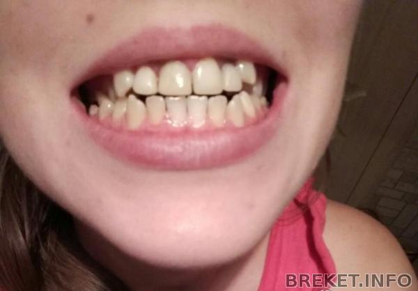 Кто может удалить не ровные зубы
