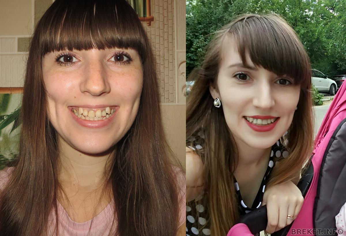 Искра лоуренс фото до и после настройки