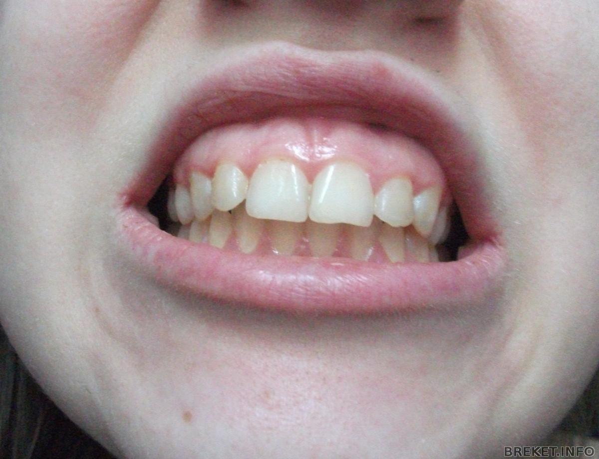 Как сделать брекет для зубов 126