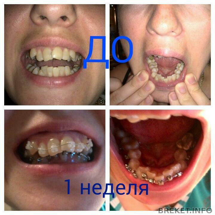 Удаление зуба липецк