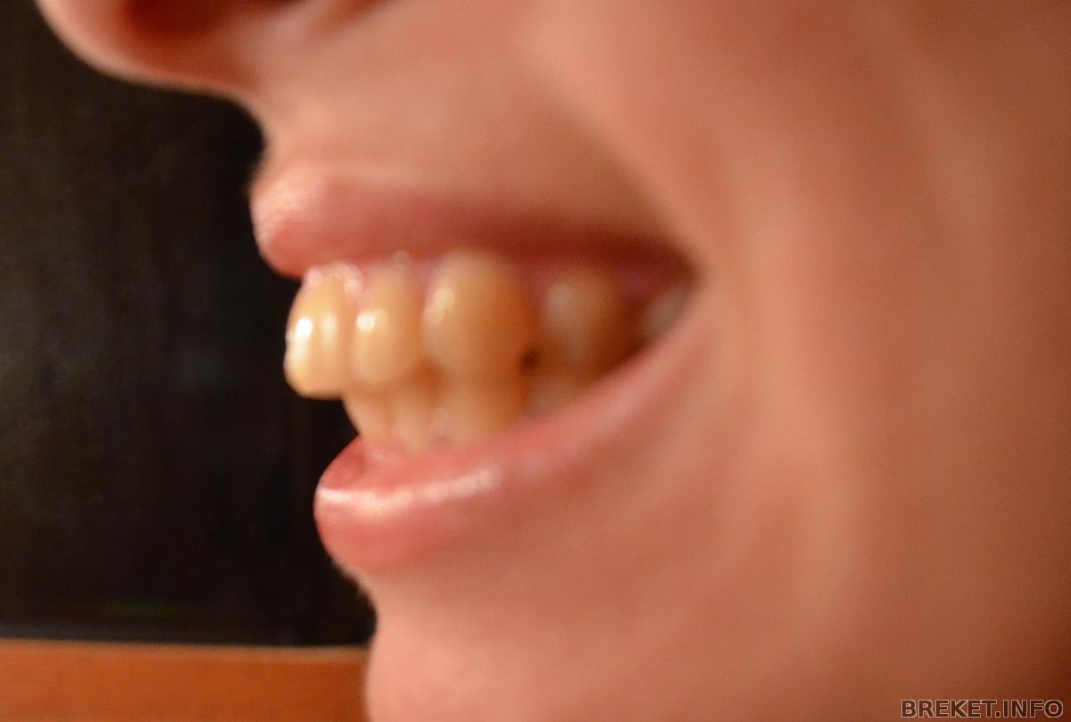 Нет сосочков у передних зубов