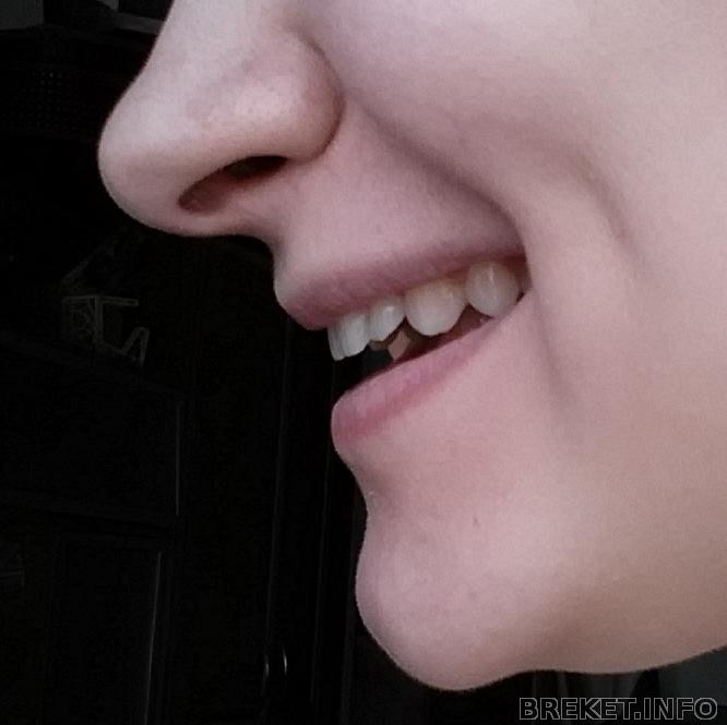 Почему не видно зубов при улыбке